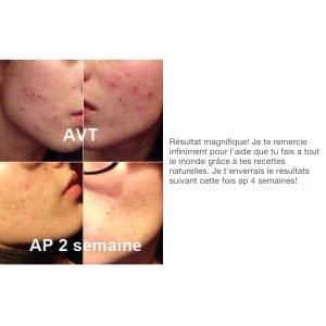 Masque anti points noirs ou pores dilat s peau neuve - Gommage visage maison point noir ...