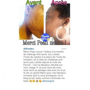 Anti acné savon d'alep