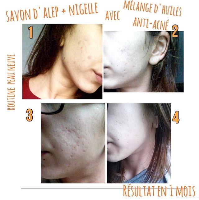 Routine anti-acné d'une lectrice #1