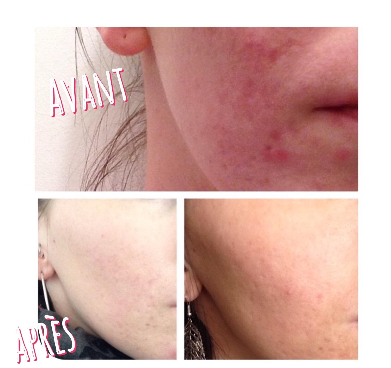 Routine anti-acné d'une lectrice #2 - Peau Neuve