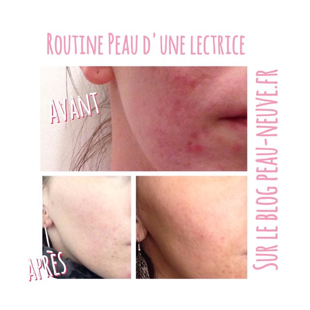 Routine anti-acné d'une lectrice #2