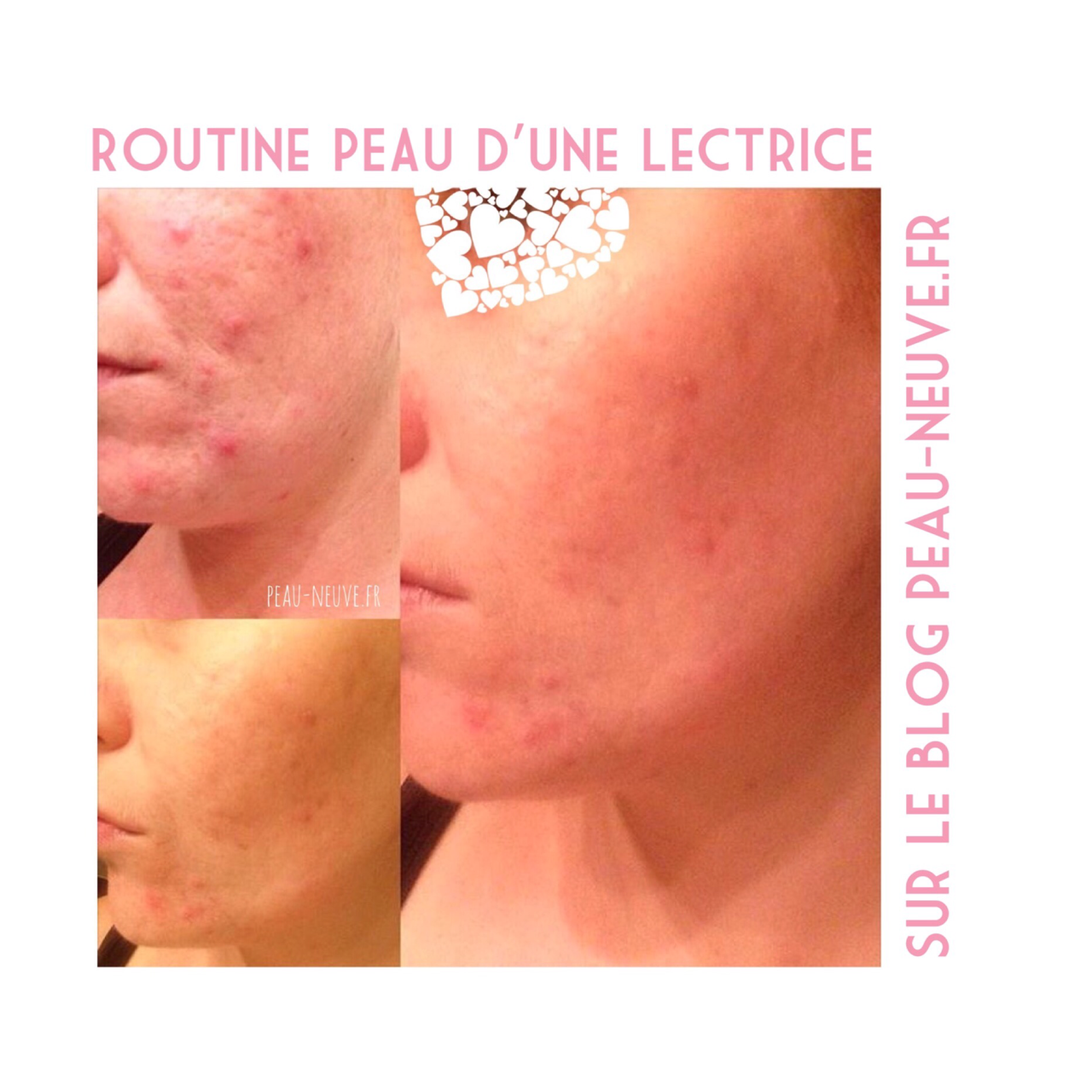 Routine anti-acné d'une lectrice #3