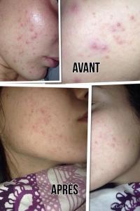 miel de thym cicatrisant acne