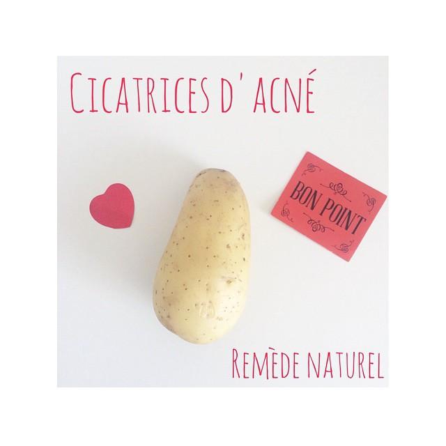 01acb7e3d7fb remède naturel contre les cicatrices ou tâches d acné