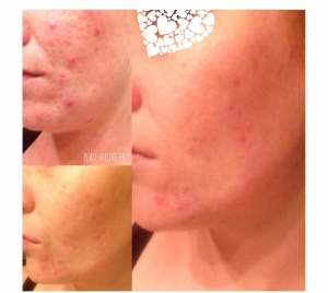 Routine anti-acné